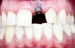 IDD-Implant-244x158